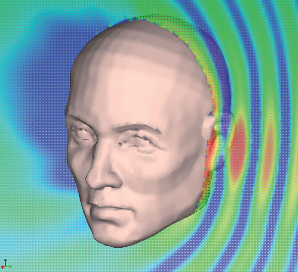 Vibroacoustic model of a human head